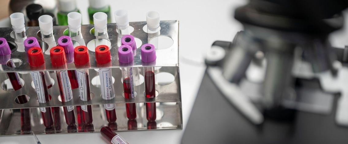 Coronavirus in Italia, il bollettino dell'8 aprile 17.221 nuovi casi