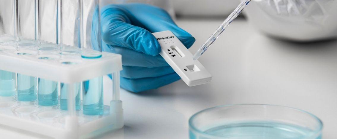 Coronavirus in Italia, il bollettino del 29 luglio 5.696 nuovi casi